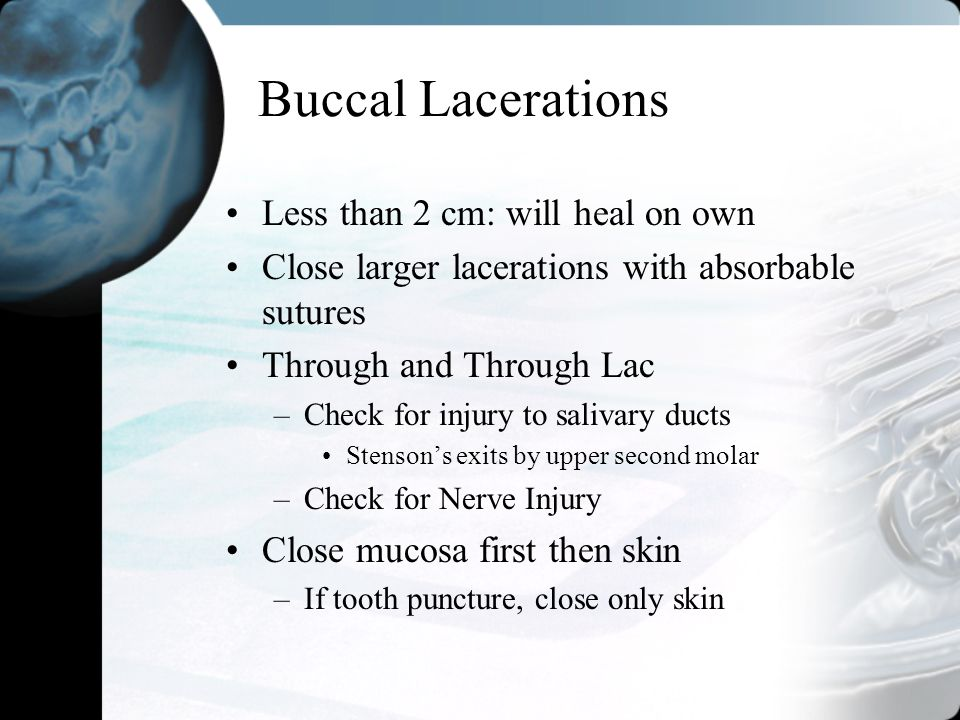 Buccal Lacerations Less than 2 cm: will heal on own