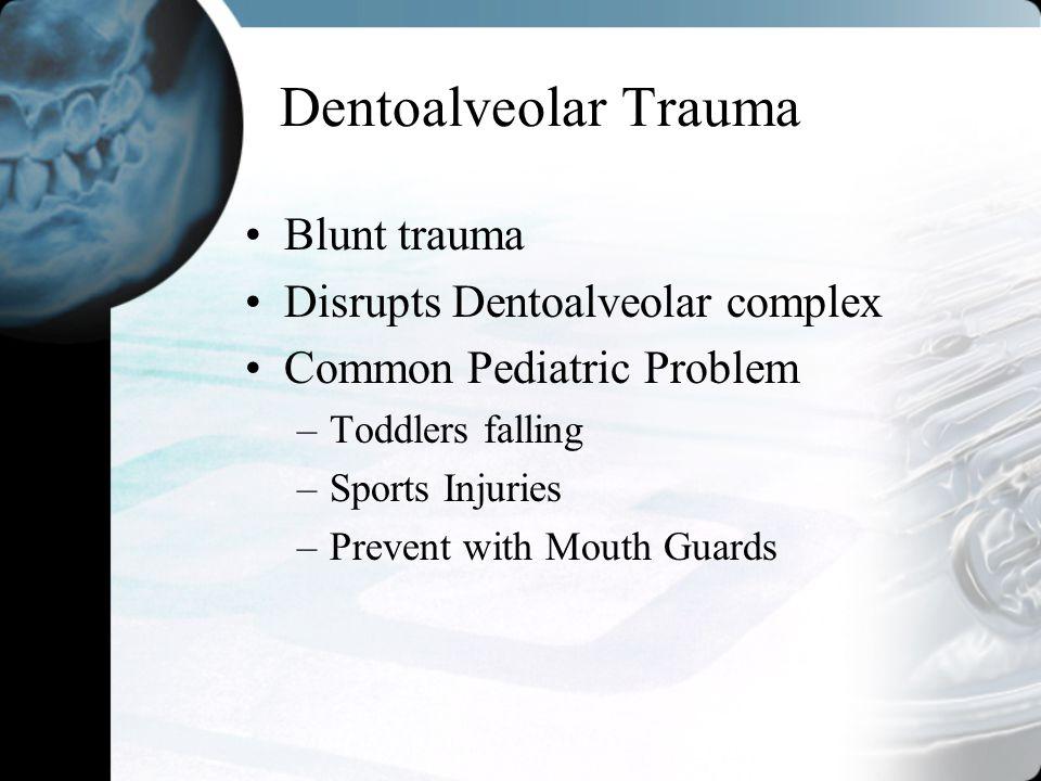 Dentoalveolar Trauma Blunt trauma Disrupts Dentoalveolar complex