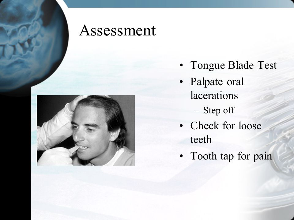 Assessment Tongue Blade Test Palpate oral lacerations