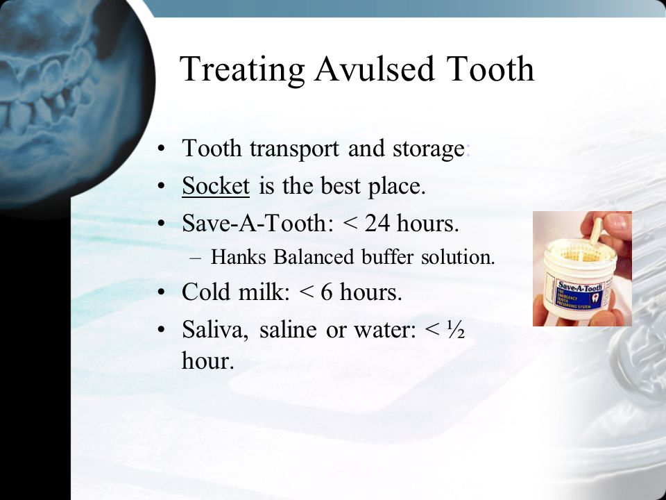 Treating Avulsed Tooth