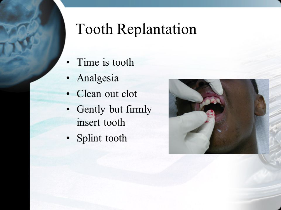 Tooth Replantation Time is tooth Analgesia Clean out clot