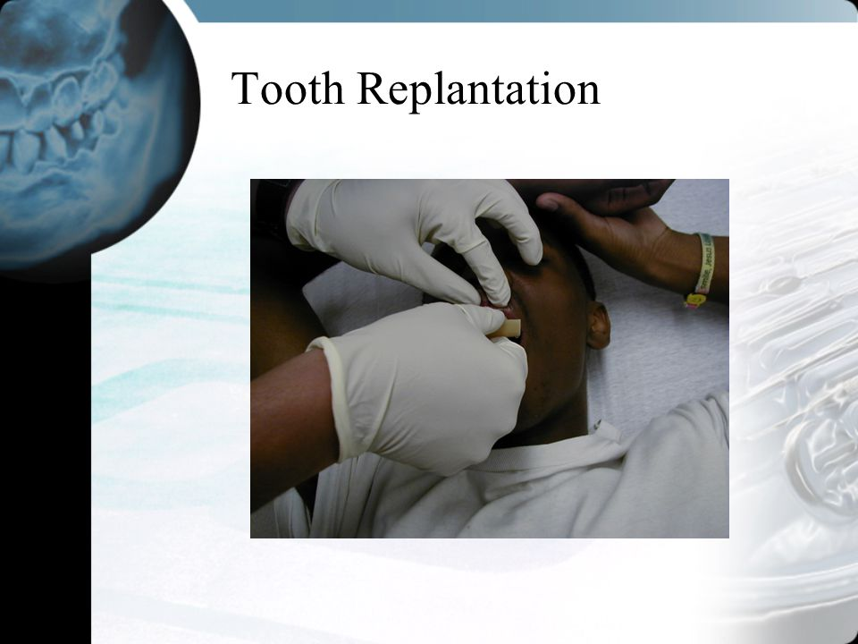 Tooth Replantation