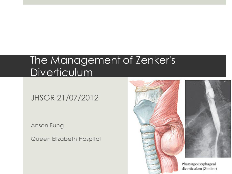 The Management of Zenker s Diverticulum