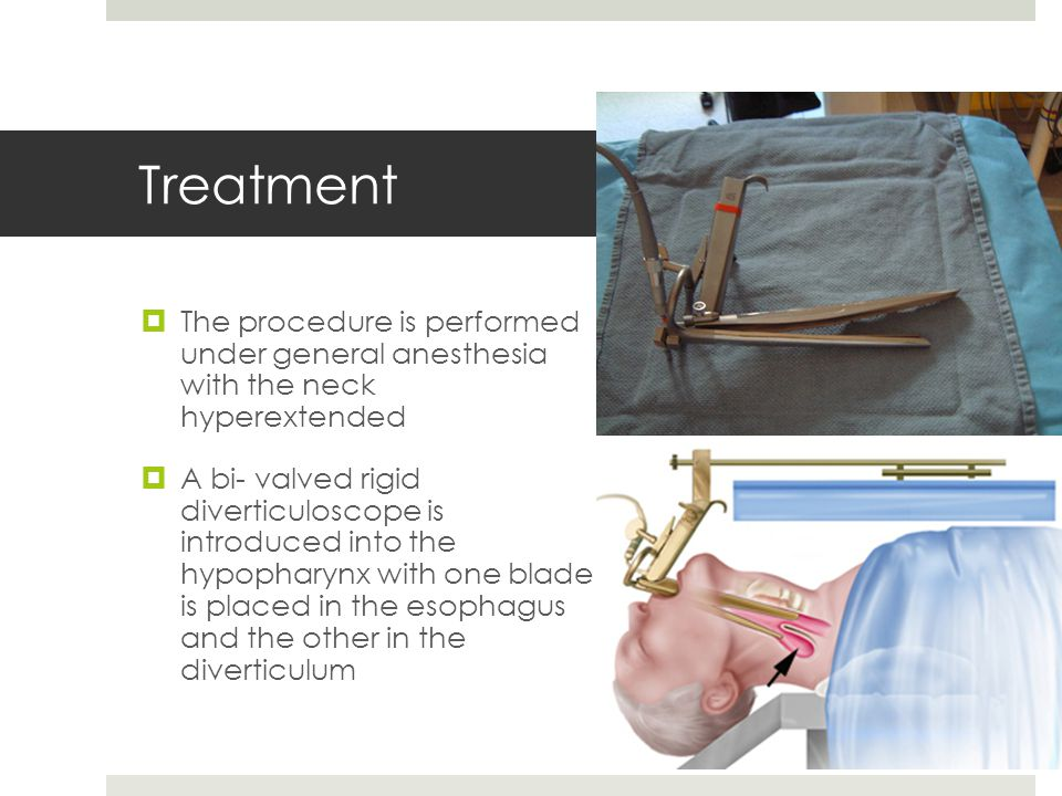 Treatment The procedure is performed under general anesthesia with the neck hyperextended.