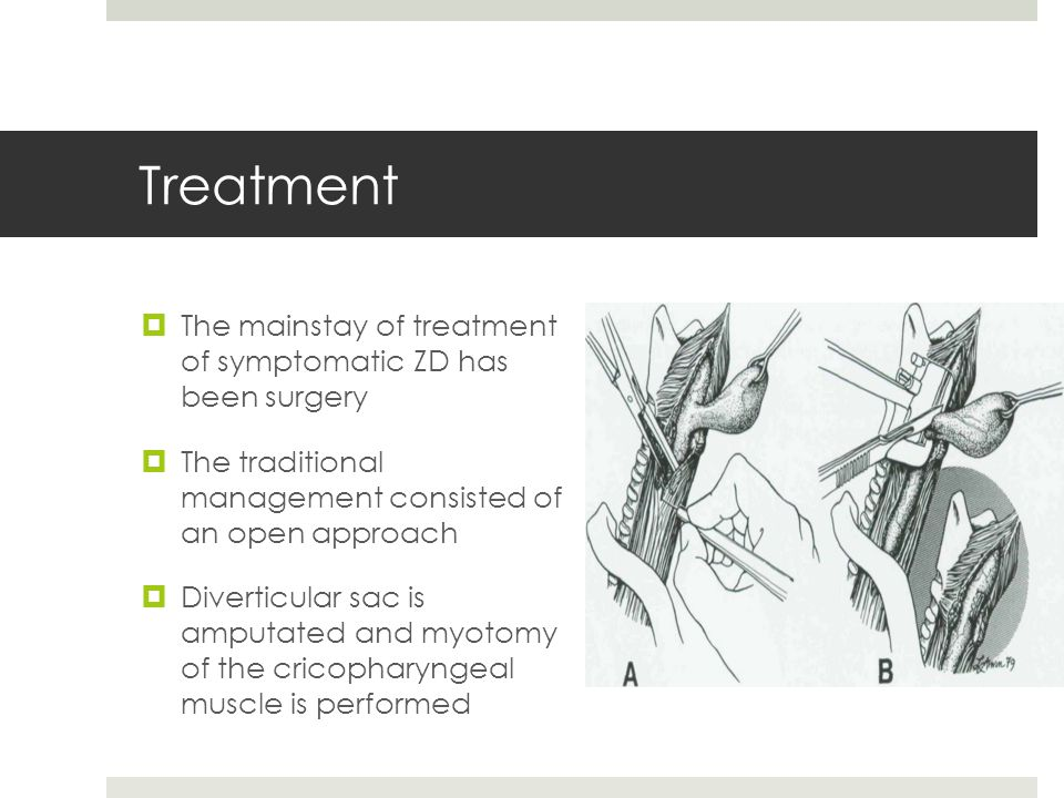 Treatment The mainstay of treatment of symptomatic ZD has been surgery