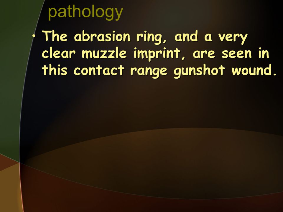 pathology The abrasion ring, and a very clear muzzle imprint, are seen in this contact range gunshot wound.