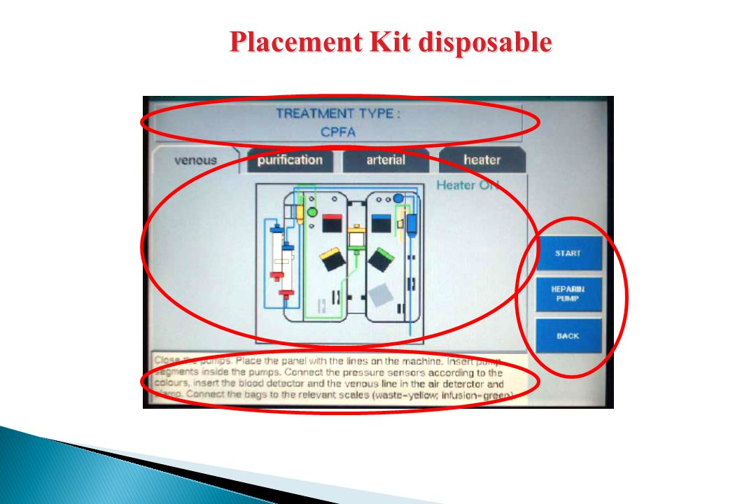 Placement Kit disposable