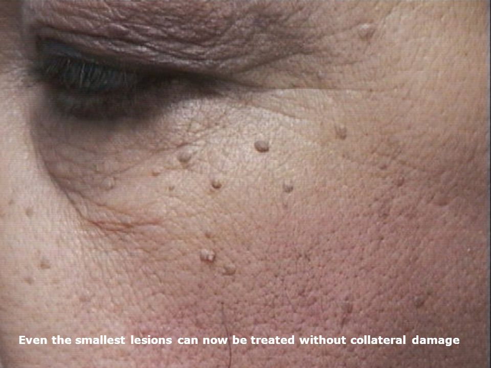 Even the smallest lesions can now be treated without collateral damage