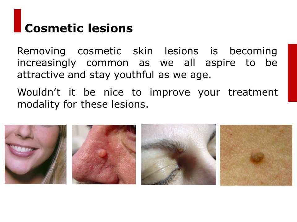 Cosmetic lesions Removing cosmetic skin lesions is becoming increasingly common as we all aspire to be attractive and stay youthful as we age.
