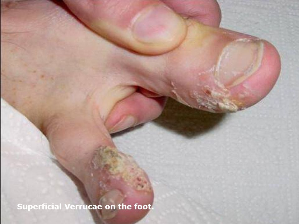 Superficial Verrucae on the foot.