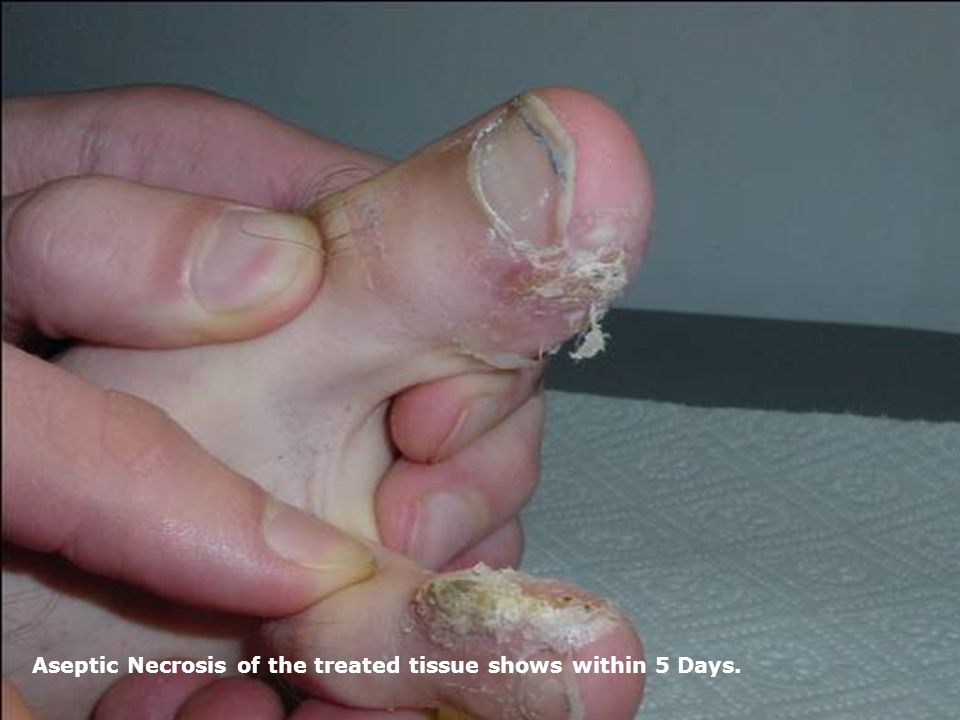 Aseptic Necrosis of the treated tissue shows within 5 Days.