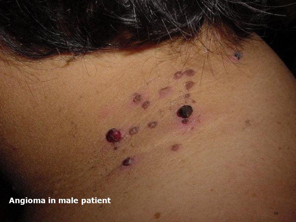 Angioma in male patient