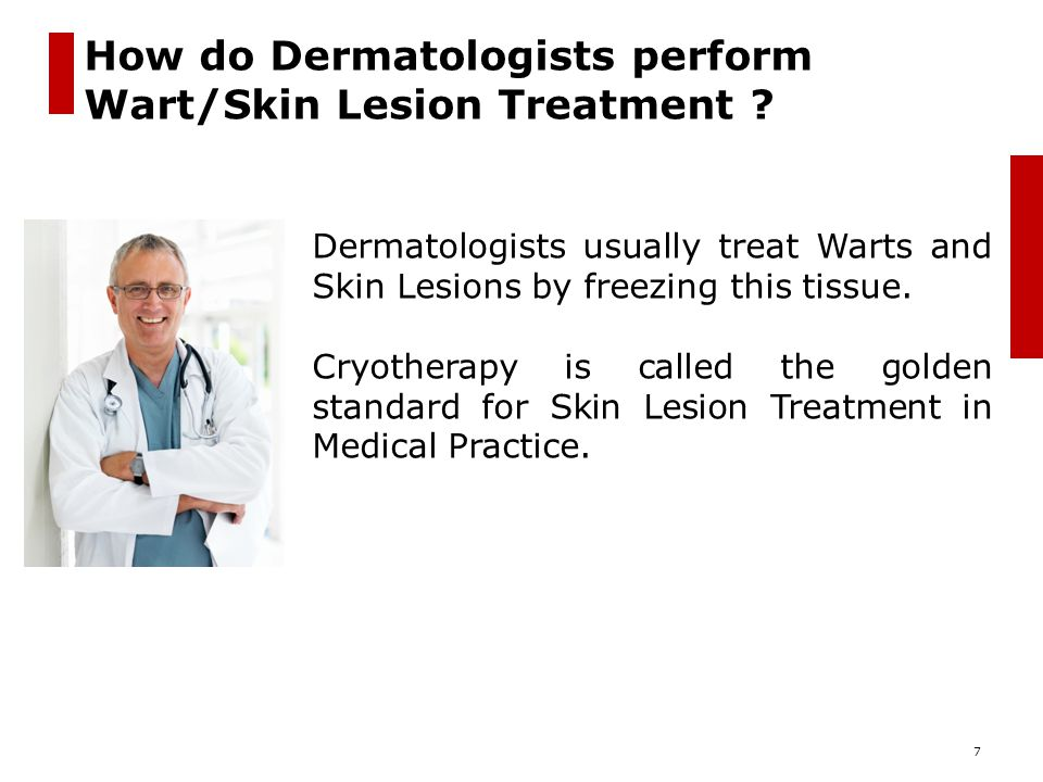 How do Dermatologists perform Wart/Skin Lesion Treatment