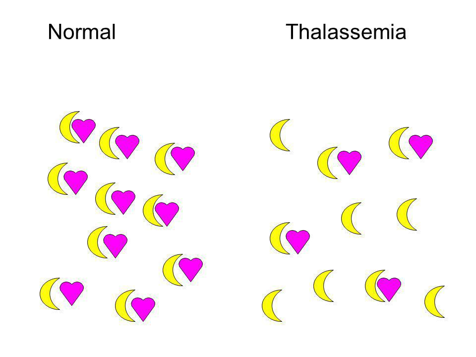 Normal Thalassemia