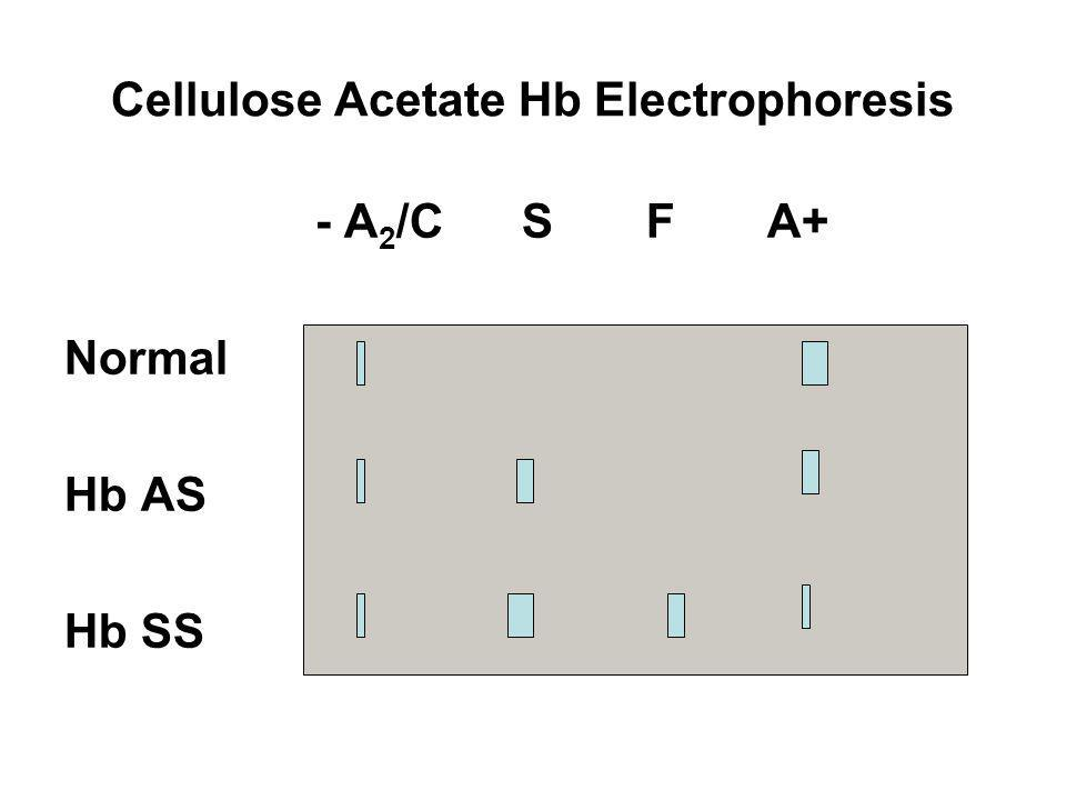 Cellulose Acetate Hb Electrophoresis