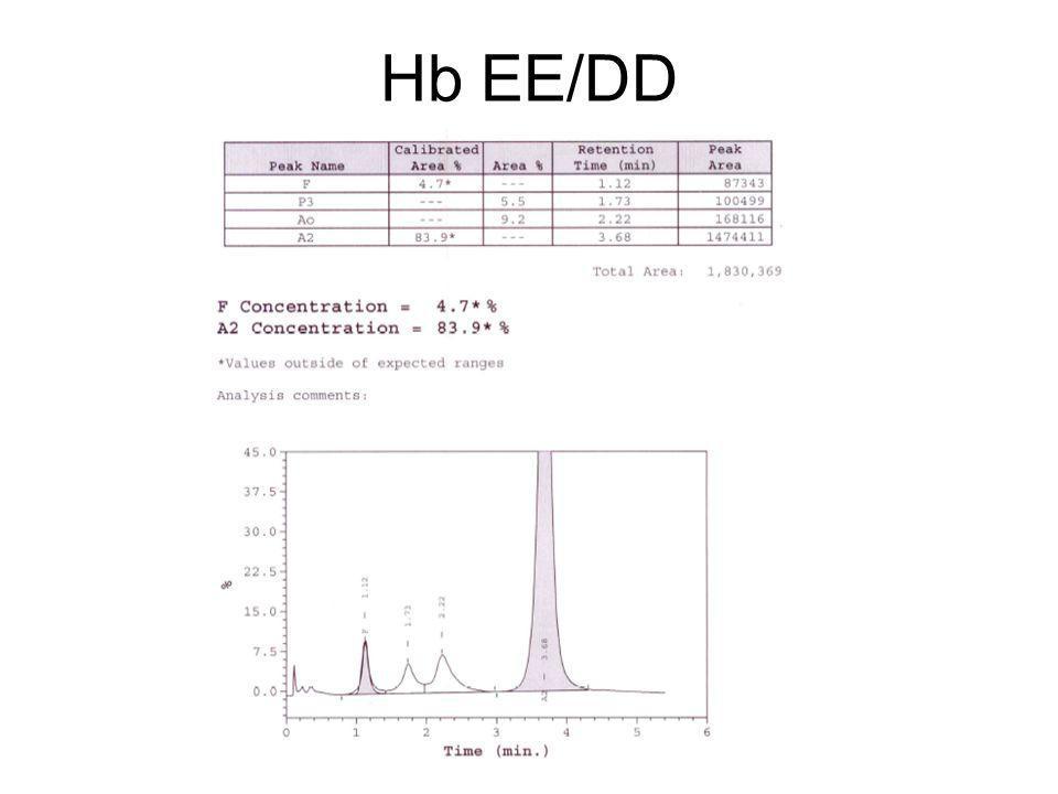 Hb EE/DD