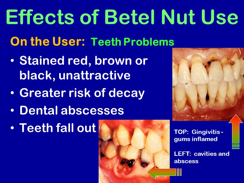 Effects of Betel Nut Use