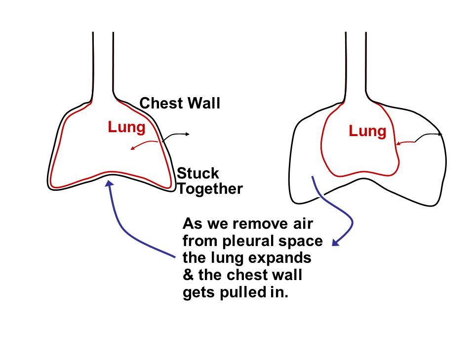 Chest Wall Lung. Lung. Stuck. Together. As we remove air. from pleural space. the lung expands.