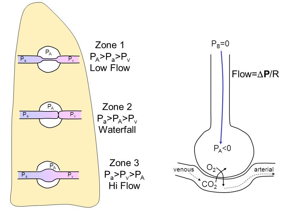 Zone 1 PA>Pa>Pv Low Flow Flow=P/R Zone 2 Pa>PA>Pv