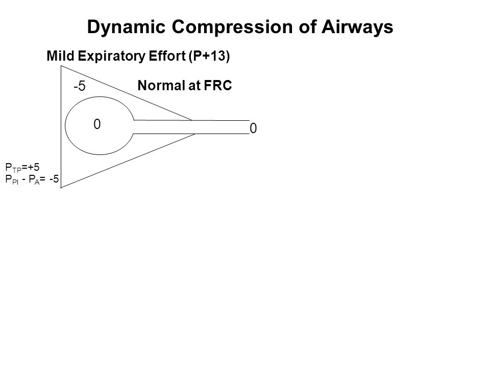 Dynamic Compression of Airways