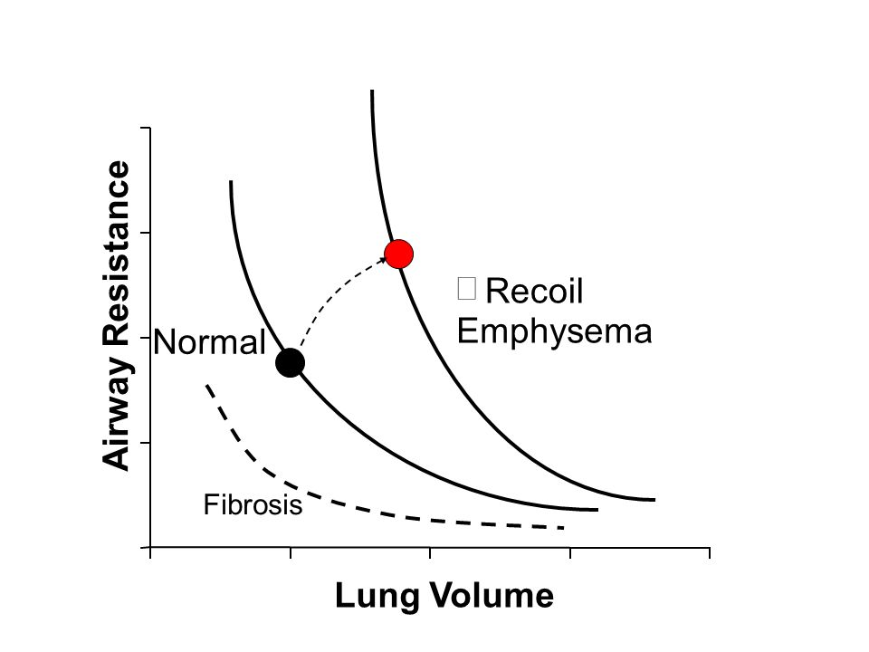 Lung Volume Airway Resistance Normal ¯ Recoil Emphysema Fibrosis