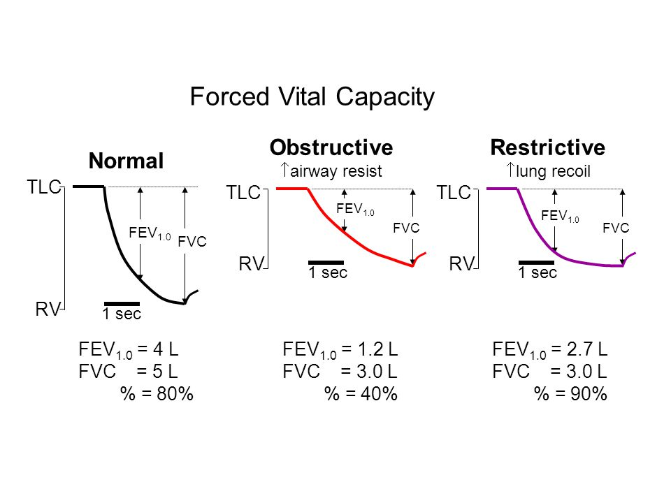 Forced Vital Capacity Obstructive Restrictive Normal TLC