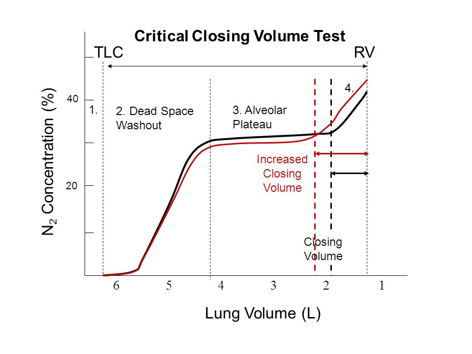 Critical Closing Volume Test TLC RV