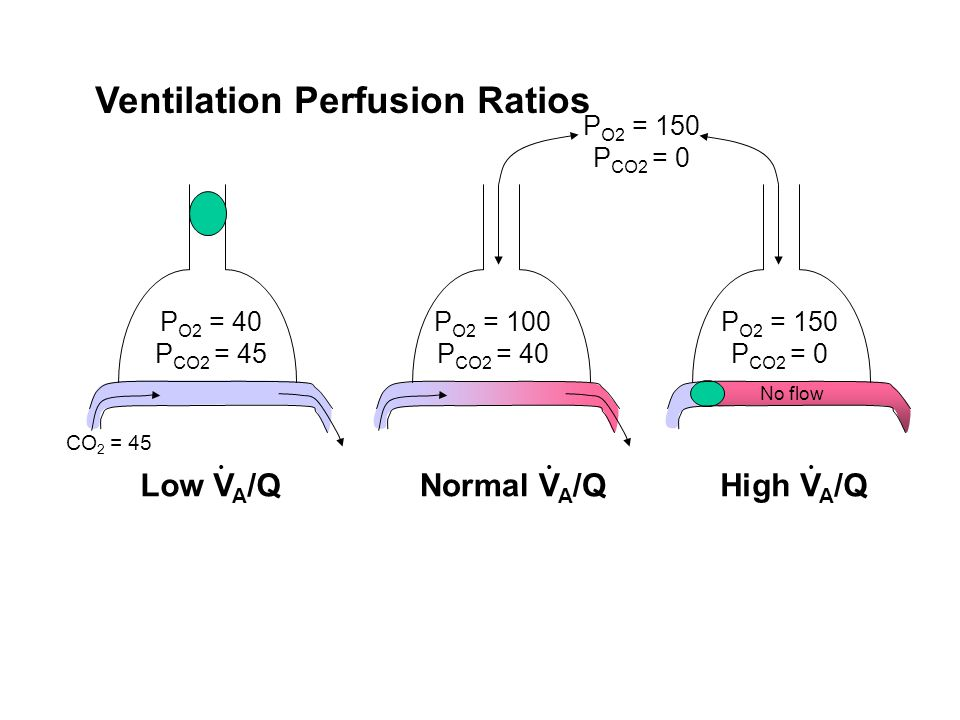 Ventilation Perfusion Ratios