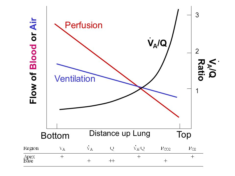 Perfusion Flow of Blood or Air VA/Q VA/Q Ratio Ventilation Top Bottom