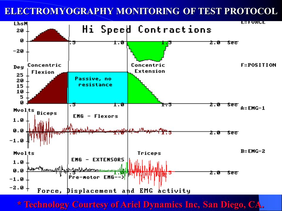 ELECTROMYOGRAPHY MONITORING OF TEST PROTOCOL
