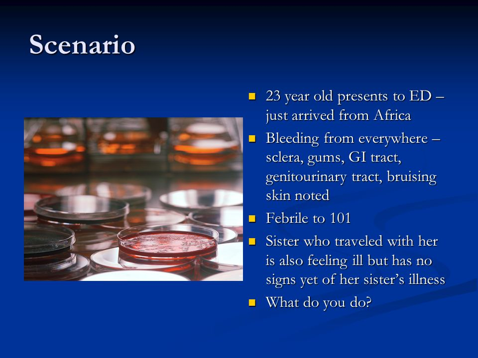 Scenario 23 year old presents to ED – just arrived from Africa