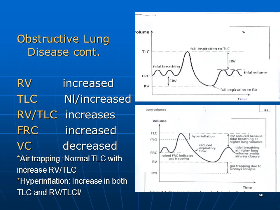 Obstructive Lung Disease cont.