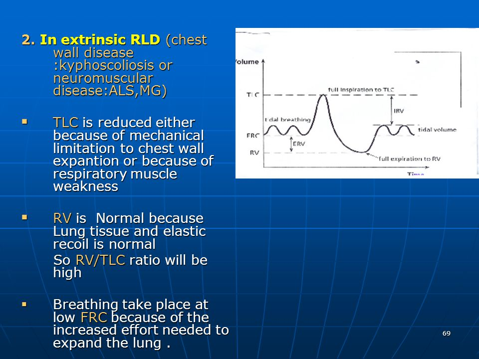 2. In extrinsic RLD (chest wall disease :kyphoscoliosis or neuromuscular disease:ALS,MG)