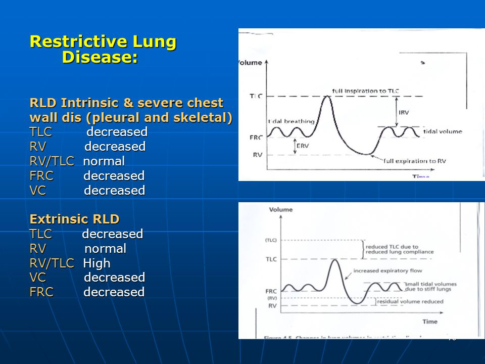 Restrictive Lung Disease:
