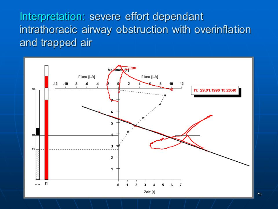 Interpretation: severe effort dependant intrathoracic airway obstruction with overinflation and trapped air