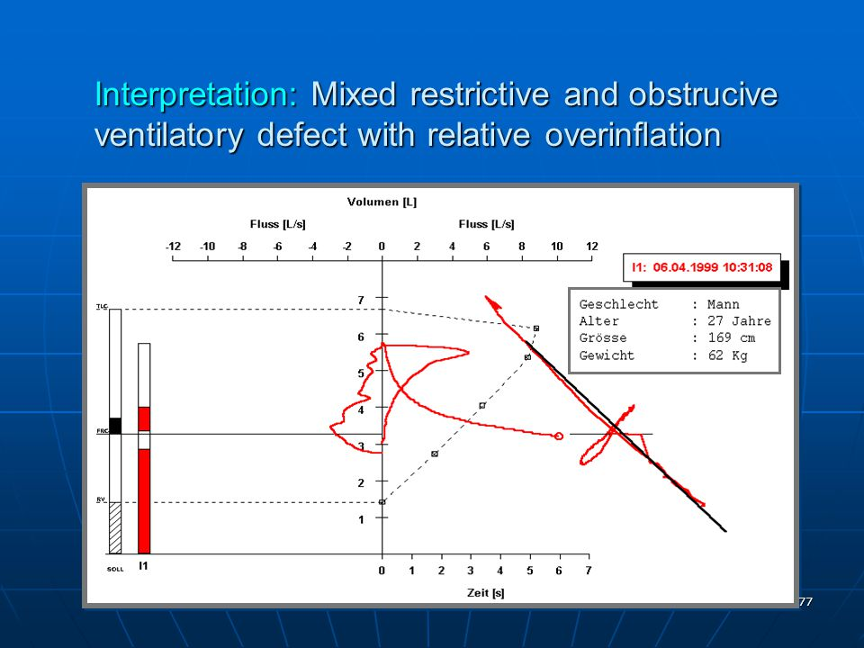 Interpretation: Mixed restrictive and obstrucive ventilatory defect with relative overinflation
