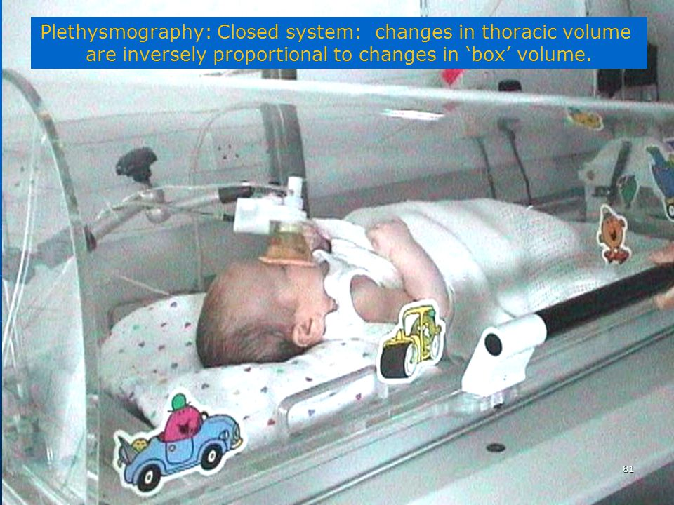 Plethysmography: Closed system: changes in thoracic volume