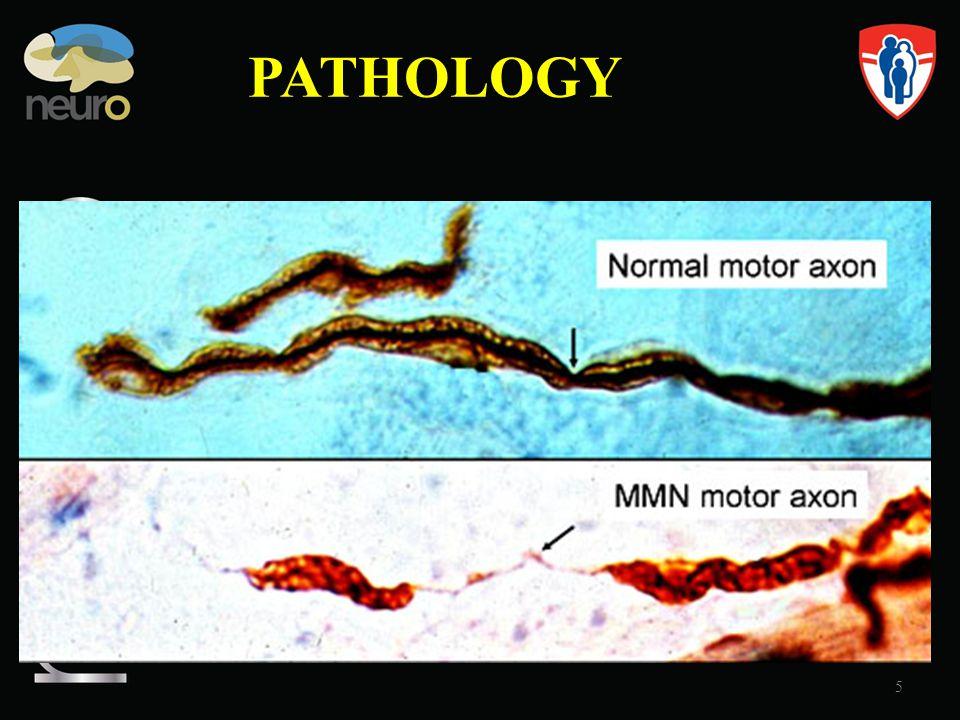 PATHOLOGY MMN Multifocal Motor Neuropathy