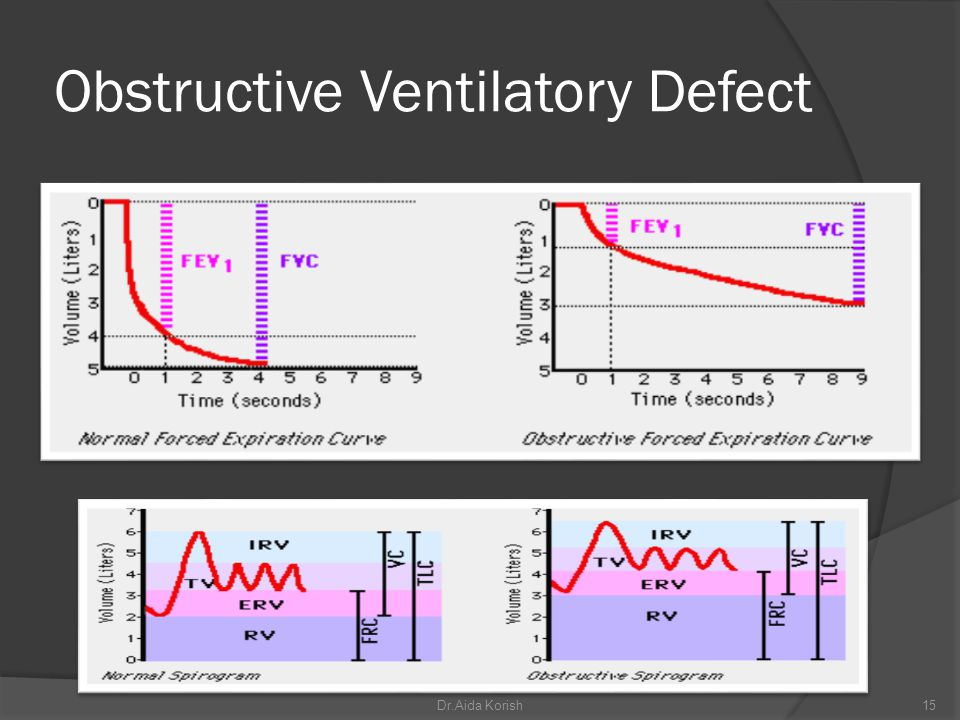 Obstructive Ventilatory Defect