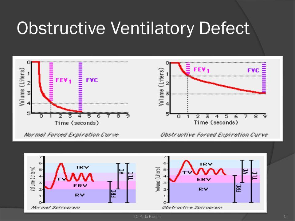 Obstructive Ventilatory Defect