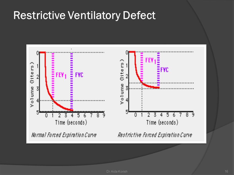 Restrictive Ventilatory Defect