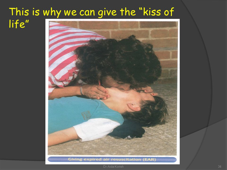 This is why we can give the kiss of life