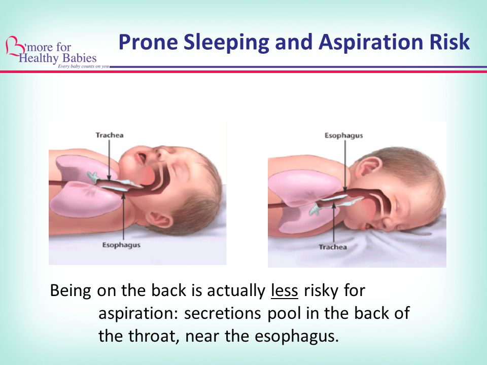 Prone Sleeping and Aspiration Risk