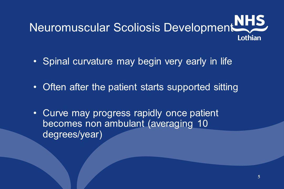Neuromuscular Scoliosis Development