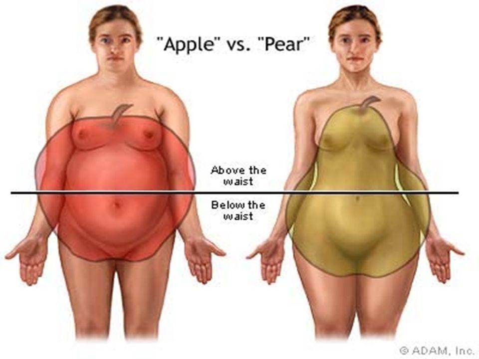 Obese individuals with excess fat deposited around the abdomen ('appleshaped') are more likely than those who have fat deposited on the hips and buttocks ('pearshaped') to develop health problems.