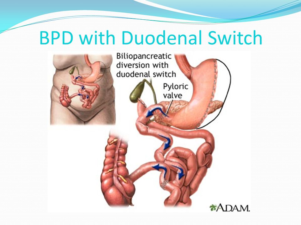 BPD with Duodenal Switch
