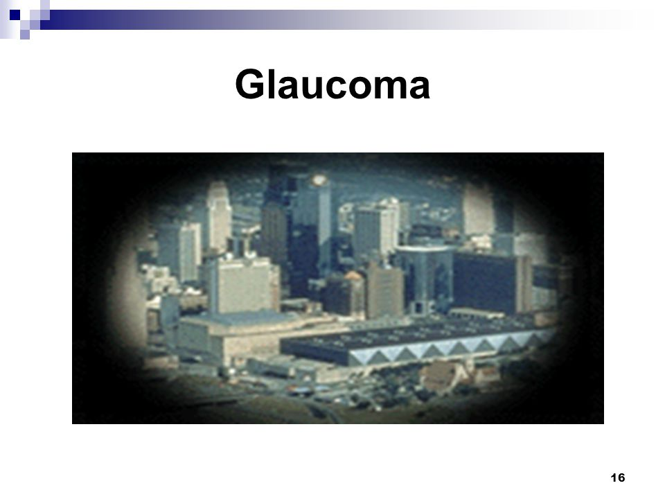 Glaucoma Glaucoma: Glaucoma is treated with medication, lasers, and surgery.