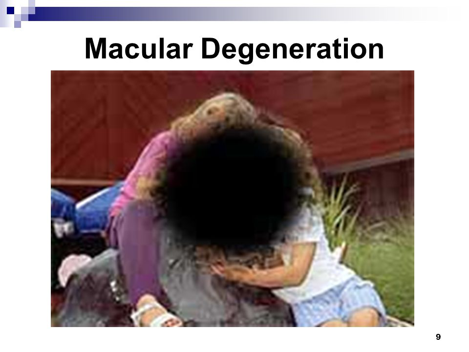 Macular Degeneration Age-related macular degeneration (AMD):