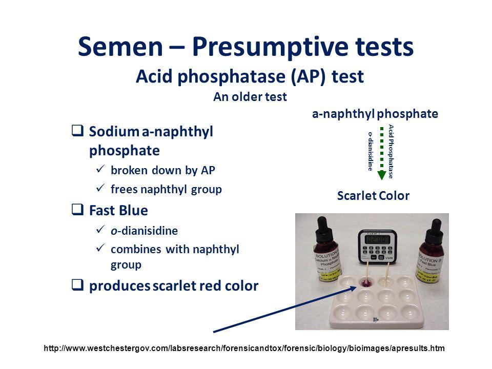 Semen – Presumptive tests