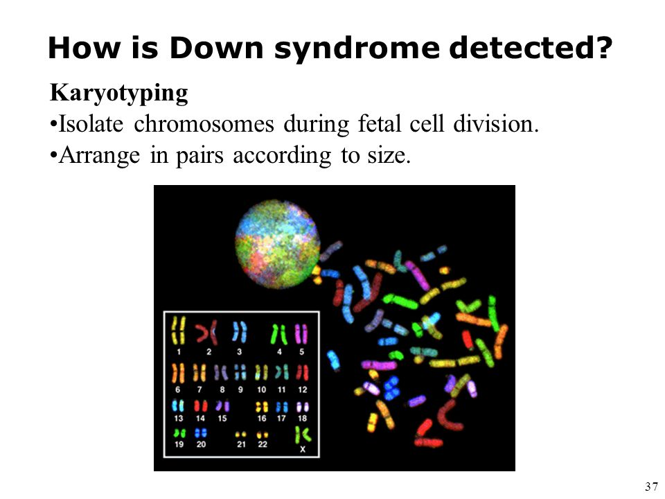 How is Down syndrome detected